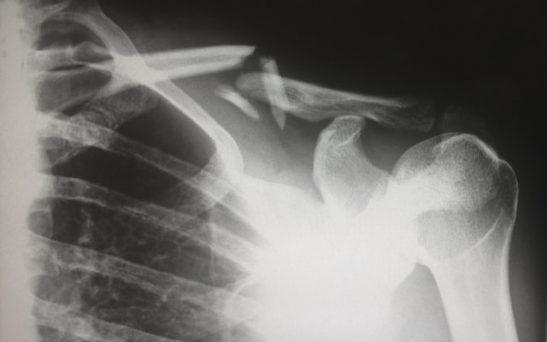 xray of injured shoulder